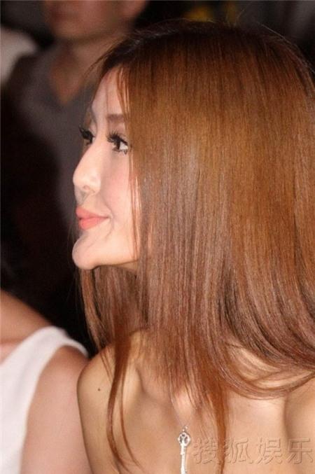 Nữ người mẫu Trung Quốc lộ cằm phù thủy vì ham hố độn cằm.
