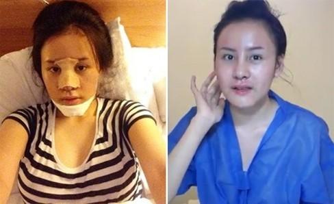 """Mới đây, nhiều độc giả hốt hoảng khi Bà Tưng liên tục đăng tải những bức ảnh trong quá trình phẫu thuật thẩm mỹ. Cô đã được các bác sĩ chỉnh sửa mũi, gọt cằm và gần như """"đại tu"""" lại toàn bộ cơ thể."""