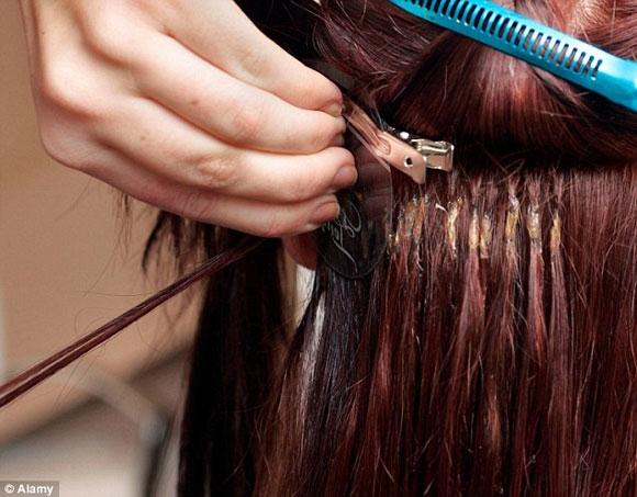 Kinh hoàng giòi tấn công não vì... tóc nối