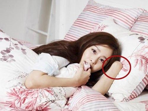 Kim Tae Hee cụt luôn... tay.