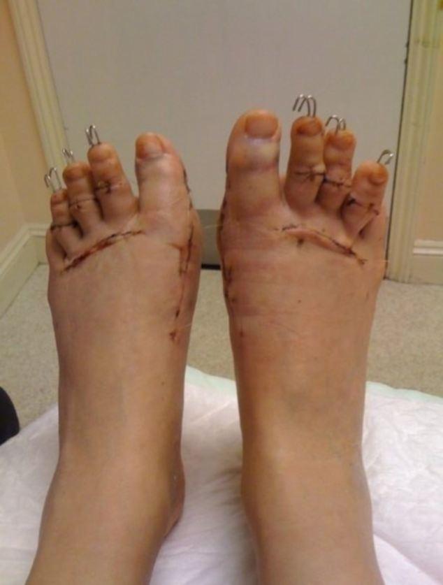Kinh dị loại hình phẫu thuật thu gọn bàn chân bằng cách...mài xương