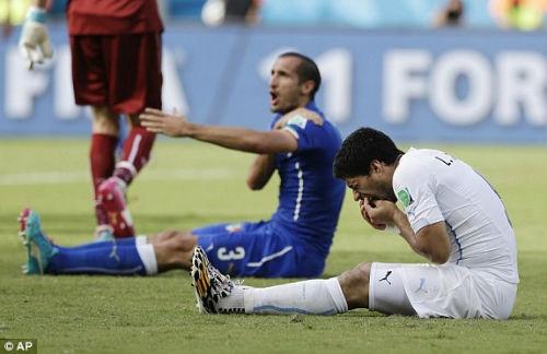 """Suarez đau đớn ngồi ôm """"bộ nhá"""" sau khi bị Chiellini vung tay phản ứng"""