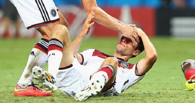 [Bóng Đá] Chùm ảnh những pha chấn thương đẫm máu tại World Cup 2014