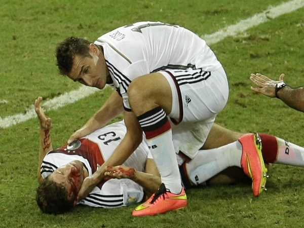 Thomas Mueller bị đau sau pha không chiến với cầu thủ Ghana John Boye