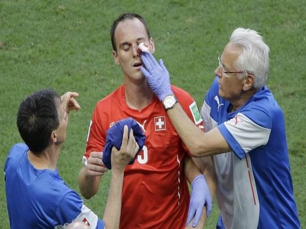 Cầu thủ của Thụy sĩ Steve von Bergen đã bị rách mắt sau pha va chạm với Olivier Giroud
