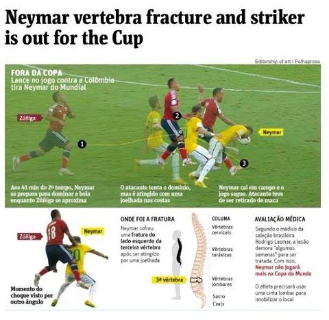 [Bóng Đá] Neymar nghỉ hết World Cup vì rạn xương sống