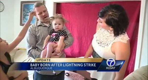 Mẹ bị sét đánh khi mang thai sinh con… tóc dựng đứng