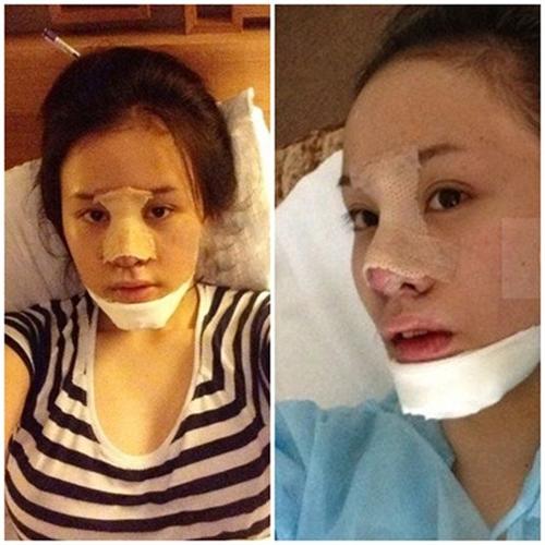 4 thiếu nữ Việt không ngần ngại công khai dao kéo