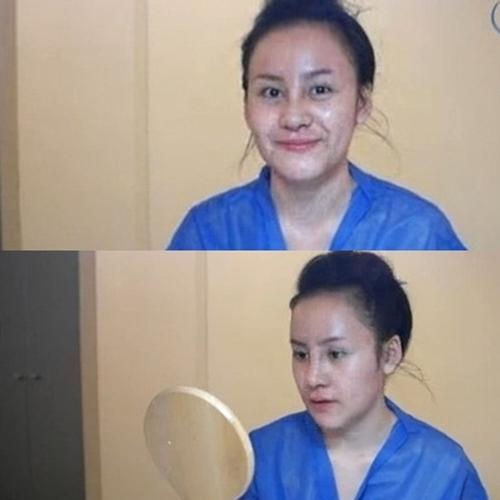 Cô nàng không ngần ngại khoe gương mặt đang trong quá trình thực hiện phẫu thuật.