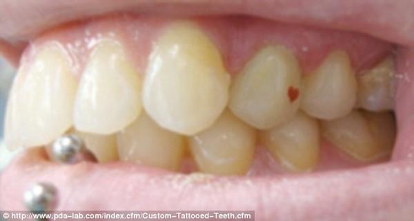 """Cảnh báo về độ nguy hiểm của trào lưu """"xăm răng"""""""