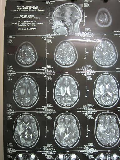 Những nốt tròn trong có nhân là nang sán lợn làm tổ dày đặc trong não bệnh nhân. Ảnh: BS cung cấp.