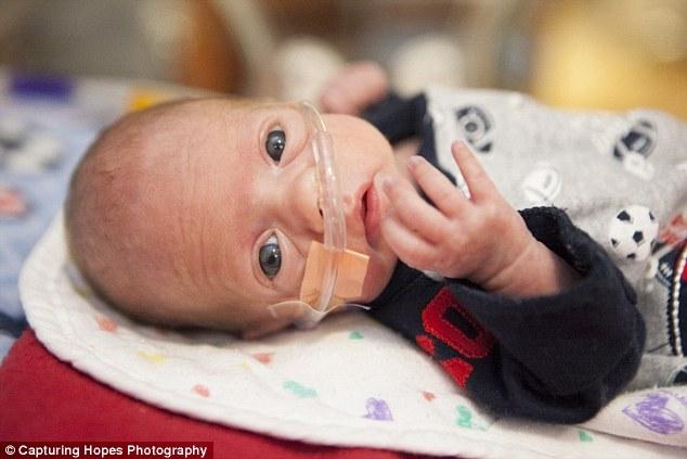 Những hình ảnh rơi nước mắt ở phòng chăm sóc trẻ sinh non (NICU)