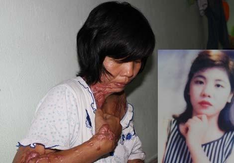 Lời kêu cứu xót xa của một nạn nhân bị tạt axit