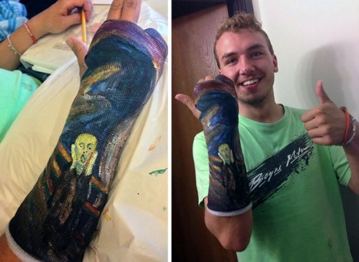 Khi người yêu nghệ thuật bị... gãy tay