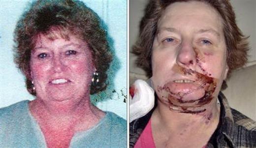 Những tình huống kì lạ xảy ra khi phẫu thuật