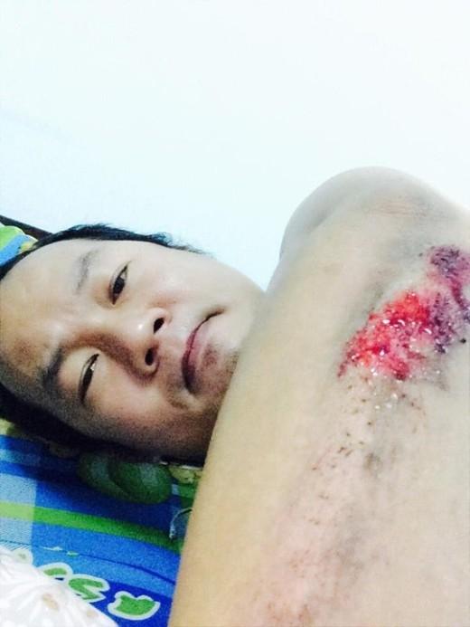 Văn Long chụp ảnh cánh tay bị thương