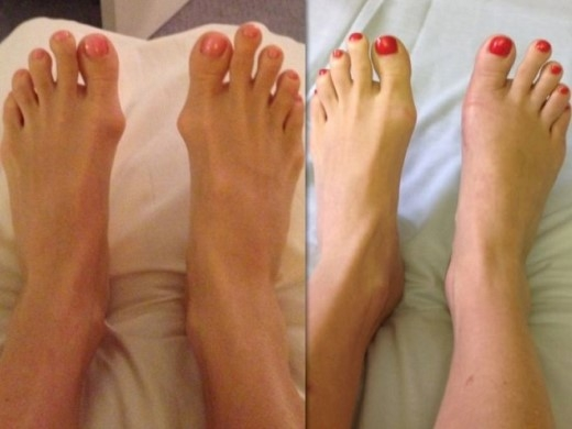 Sonja đã mài chân khá nhiều để có được vẻ ngoài như hiện tại.