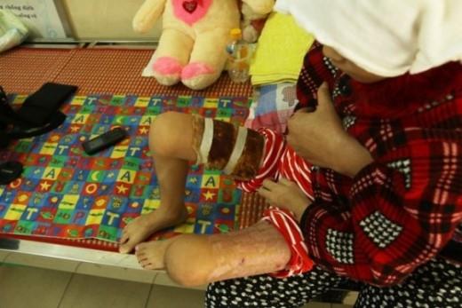 Cháu Trang đau đớn, vật vã trong mỗi lần thay băng