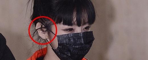 Cư dân mạng nghi ngờ Park Bom lại đụng dao kéo?