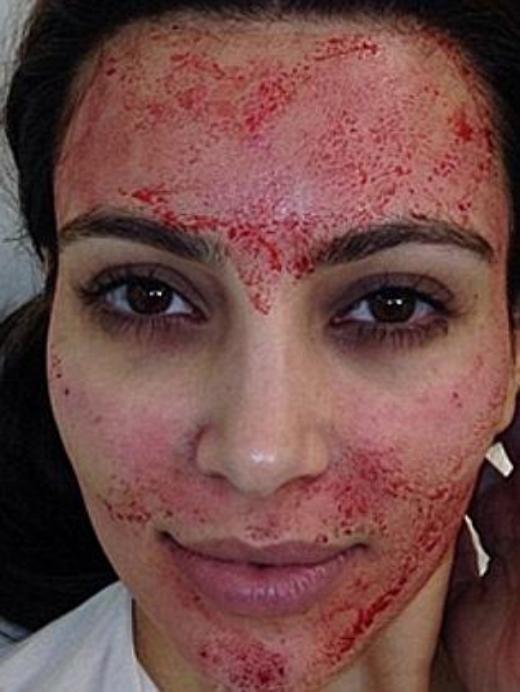 Khuôn mặt sau khi chăm sóc da được ví như ma cà rồng của Kim Kardashian.
