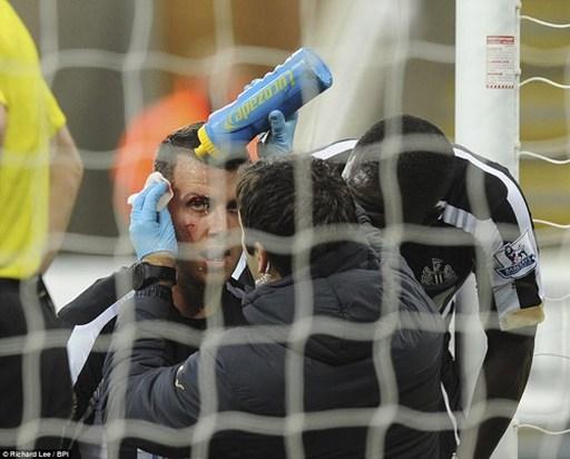 Sau khi được các bác sĩ chăm sóc, hậu vệ của Newcastle đã tỉnh lại, anh tiếp tục vào sân thi đấu tới cuối trận