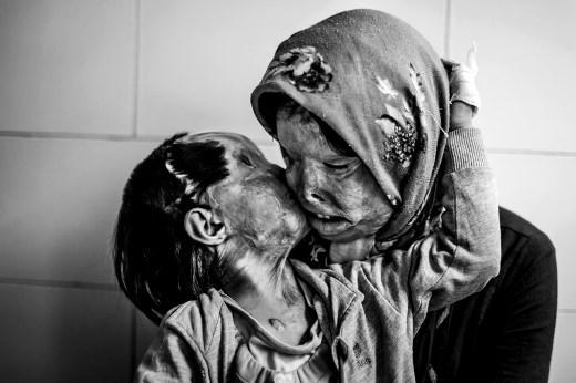Mẹ và con gái 3 tuổi, bị chính người chồng tấn công bằng axit