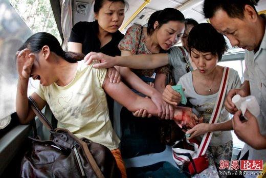 Hành khách đi xe bus cố cứu một phụ nữ định tự tử bằng cách cứa cổ tay bằng dao cắt trái cây