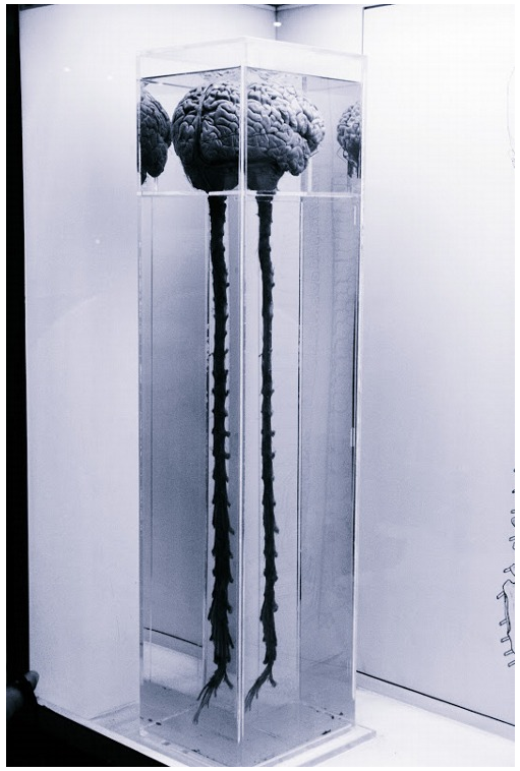 Hình ảnh thật về não bộ và dây thần kinh cột sống của con người