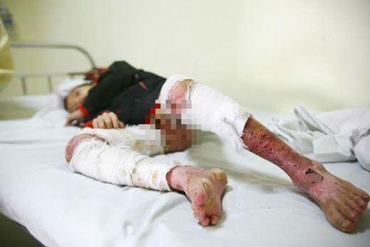 Bị bố chất rơm đốt, bé trai 7 tuổi này bị bỏng 30% cơ thể bao gồm bộ phận sinh dục, toàn bộ 2 đùi, cẳng chân...