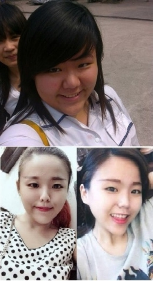 Cô nàng Minh Châu trước và sau khi giảm cân