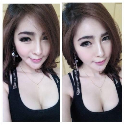 Hot girl Thái Lan qua đời trên bàn mổ.