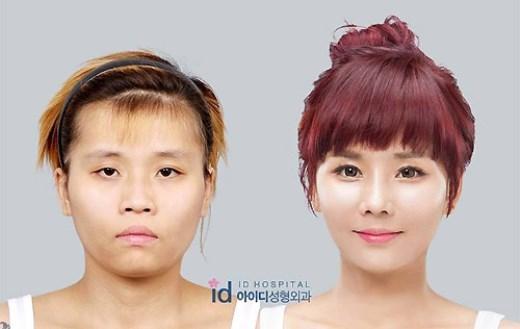 """Bae So Young trước và sau """"dao kéo"""""""