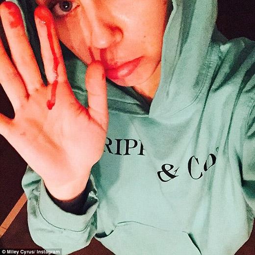 Miley Cyrus đổ máu, thản nhiên hút xì gà