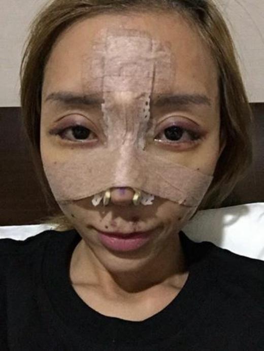 Sao nữ gợi cảm nhất Malaysia 2014 biến dạng mặt vì nghiện thẩm mỹ
