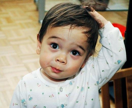 Gãi đầu quá nhiều sẽ khiến tóc bạn càng dễ gãy rụng