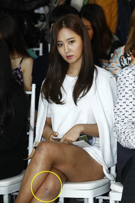 Vết bầm tím trên chân của Yuri khiến fan tò mò và lo lắng