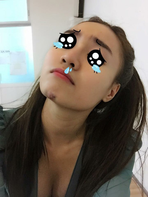 Ninh Dương Lan Ngọc gặp tai nạn khi tập luyện cho Bước nhảy hoàn vũ khiến cằm của cô bầm tím khá to