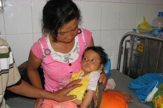 Tiên lượng sau phẫu thuật sức khỏe của bé Sơ Ao K'My Chu sẽ ổn định.