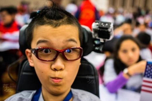 Ben Loi có khuôn mặt thông minh, tinh nghịch