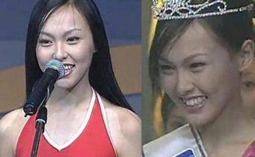 Hình ảnh khi 18 tuổi của Đường Yên với gương mặt răng khấp khểnh, mắt không đẹp