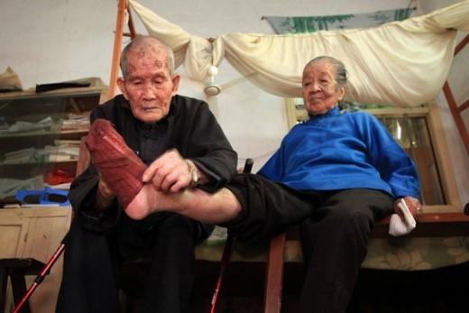 Wu Songkun, một phụ nữ 104 tuổi tại tỉnh Phúc kIến, bị thương ở chân. Wang Pengpeng, người chồng 105 tuổi của bà, đang chăm sóc chân của vợ. Hai người đã sống cùng nhau 79 năm.