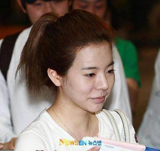 Dù rất giữ gìn nhưng có vẻ da mặt của Sunny không nghe lời cô. Khi vừa mới ra mắt, Sunny thường bị soi vào da mặt khô cằn và đầy mụn của mình.