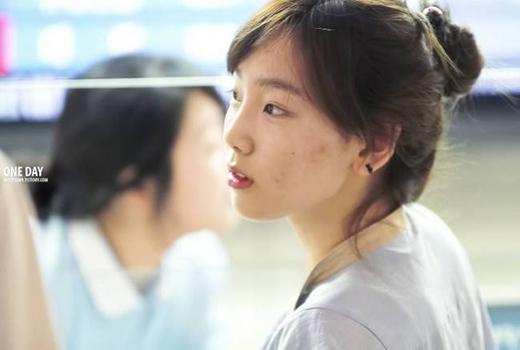 Được mệnh danh là thành viên có nước da đẹp và trắng nhất SNSD, nhưng đôi khi Taeyeon cũng không tránh khỏi những lúc như thế này.