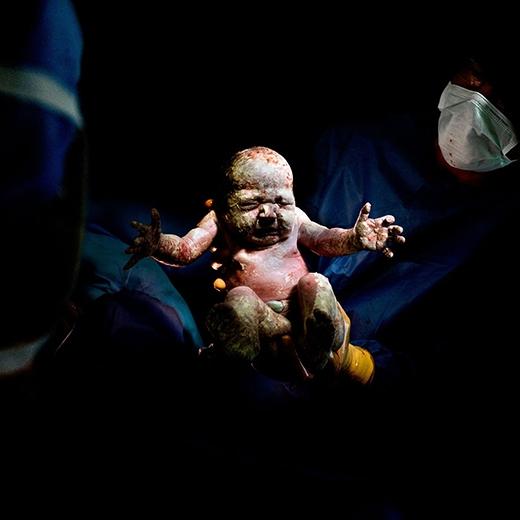 """Bức ảnh ấn tượng trong bộ ảnh """"Caesar"""" – ghi lại cảnh chào đời của các em bé sơ sinh."""