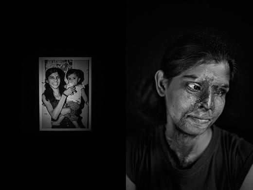 Đây là chân dung của một nạn nhân bị tạt axit ở Ấn Độ. Bức ảnh bên trái là chân dung trước khi cô gái gặp nạn.