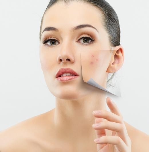Những thành phần bạn không nên sử dụng cho da mặt