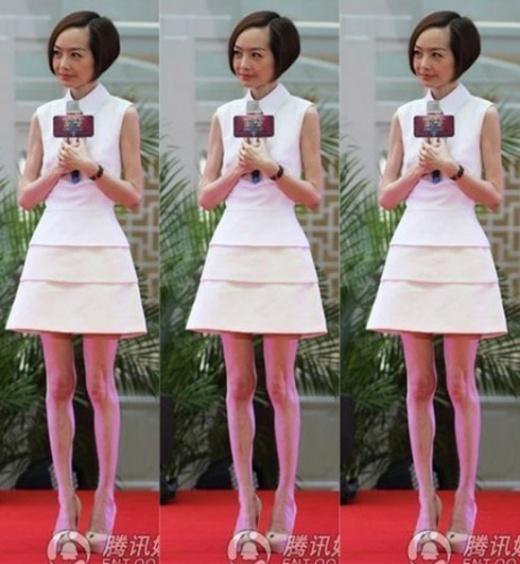 MC hàng đầu Lỗ Dự thường gặp nhiều chê bai vì đôi chân teo tóp chẳng khác gì bộ xương khô di động. Cô vì thế cũng bị tiếng là MC gầy gò nhất Trung Quốc.