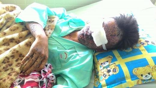 Xót xa chàng trai bị phỏng toàn mặt, mù mắt vì chất nổ