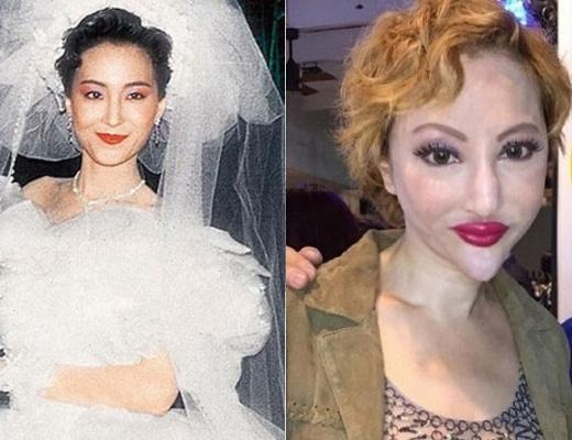 Những nhan sắc nổi tiếng châu Á điêu tàn dị dạng vì thẩm mỹ