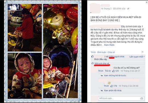 Xót xa bé gái bị lở loét vẫn đi bán bóng bay trong giá rét